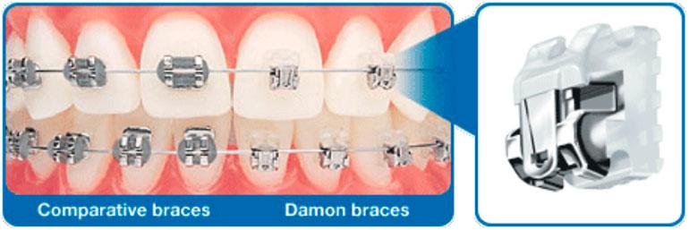 Benefits of Damon Braces. Comparative braces/Damon braces