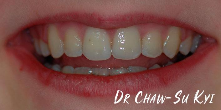 CHILDREN'S BRACES - After Treatment Photo, teeth, patient 1