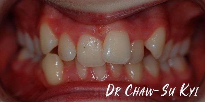 CHILDREN'S BRACES - Before Treatment Photo, teeth, patient 1