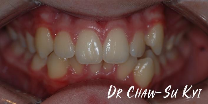 CHILDREN'S BRACES - Before Treatment Photo, teeth, patient 3