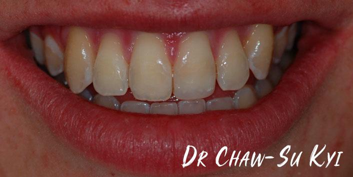 CHILDREN'S BRACES - After Treatment Photo, teeth, patient 2