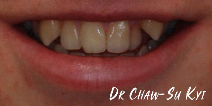 CHILDREN'S BRACES - Before Treatment Photo, teeth, patient 2