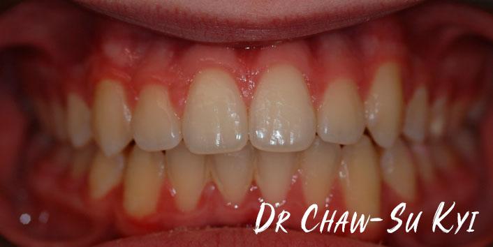 CHILDREN'S BRACES - After Treatment Photo, teeth, patient 3