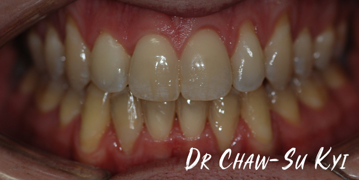 Lingual braces - After Treatment Photo, teeth, patient 2