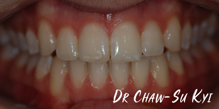 Lingual braces - After Treatment Photo, teeth, patient 4