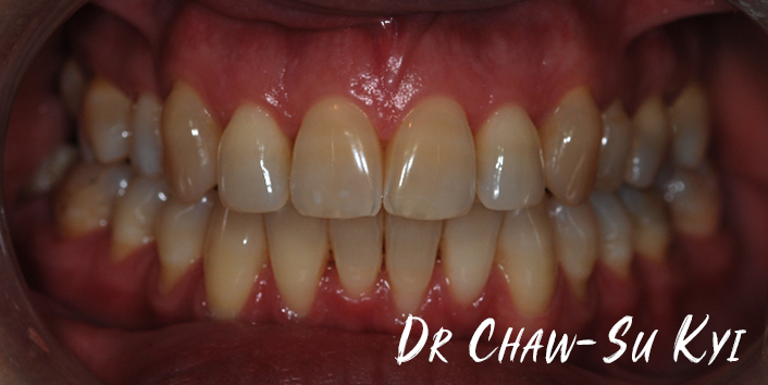 Lingual braces - After Treatment Photo, teeth, patient 6