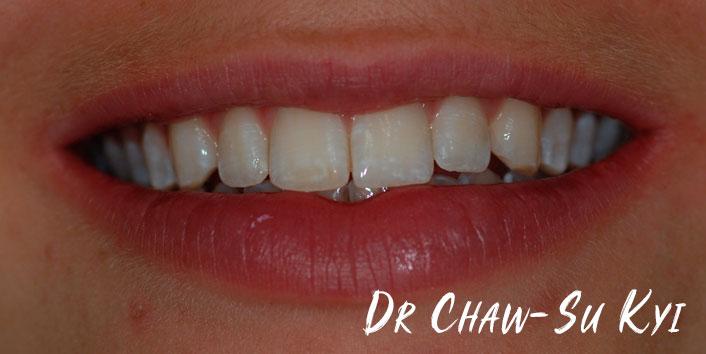 Lingual braces - After Treatment Photo, teeth, patient 4