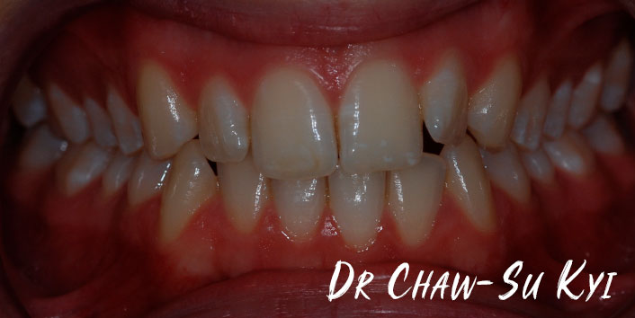 Lingual braces - Before Treatment Photo, teeth, patient 4