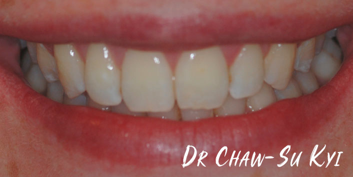 Invisalign - After Treatment Photo, teeth, patient 2