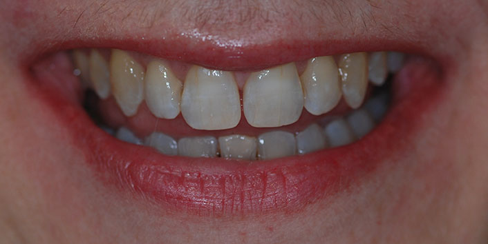 Invisalign - After Treatment Photo, teeth, patient 16