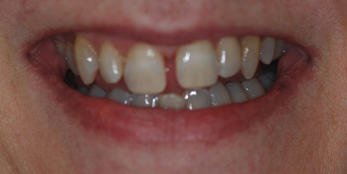 Invisalign - Before Treatment Photo, teeth, patient 16