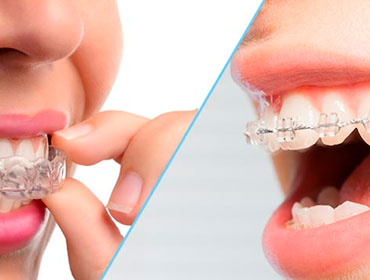 Is Invisalign Cheaper Than Braces? | WeLCOMe Orthodontics ...