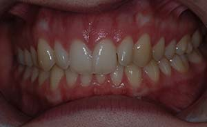 Braces and Teeth Extraction: Mild crowding