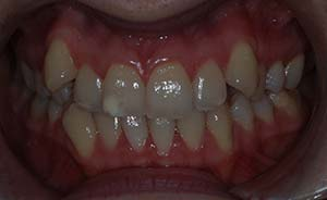 Braces and Teeth Extraction: Moderate crowding
