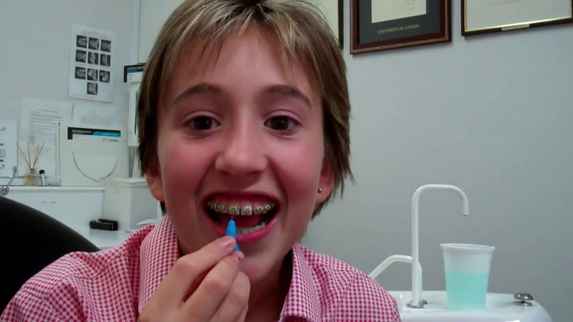Watch Video: Welcome Orthodontics: Patient Testimonial