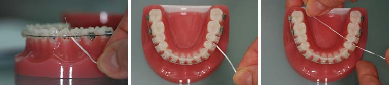 Flossing with fixed braces