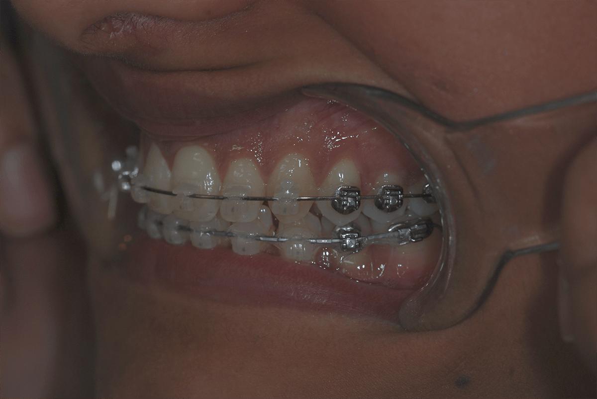 patient fixed braces photo