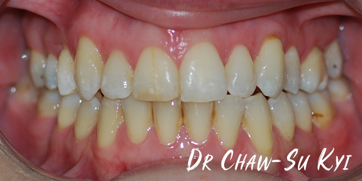 After Adult braces Treatment, teeth photo, patient 38