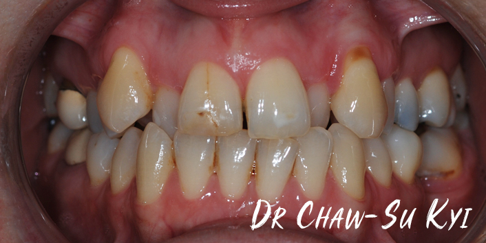 Before Adult braces Treatment, teeth photo, patient 38