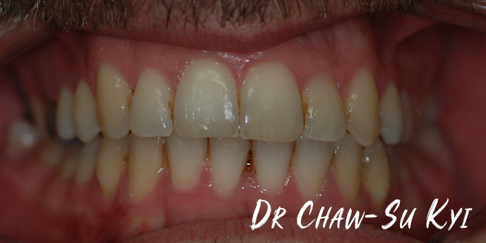 After Adult braces Treatment, teeth photo, patient 39