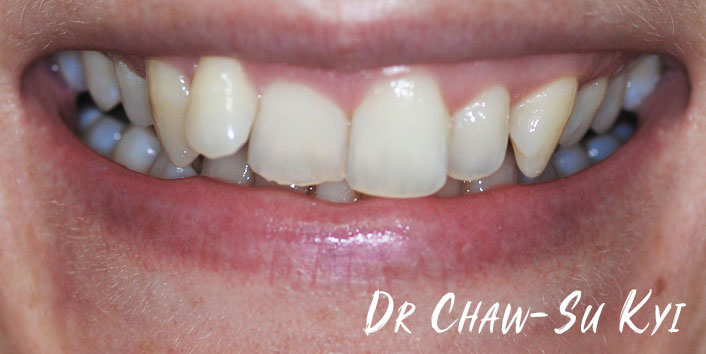 Before Adult braces Treatment, teeth photo, patient 40