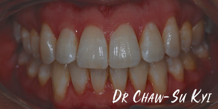 After Adult braces Treatment, teeth photo, patient 30