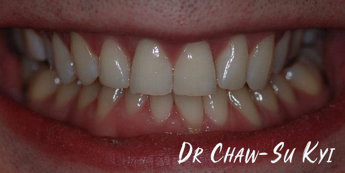 After Adult braces Treatment, teeth photo, patient 31