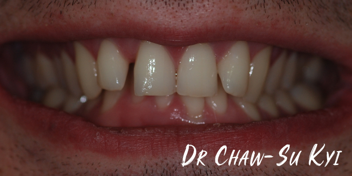 Before Adult braces Treatment, teeth photo, patient 31