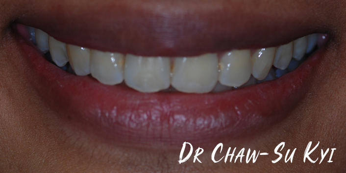After Adult braces Treatment, teeth photo, patient 32