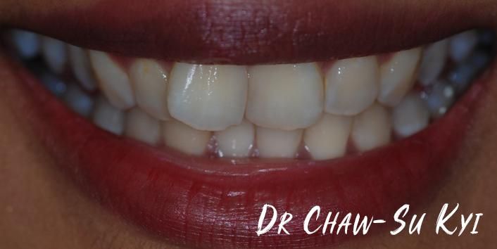 Before Adult braces Treatment, teeth photo, patient 32