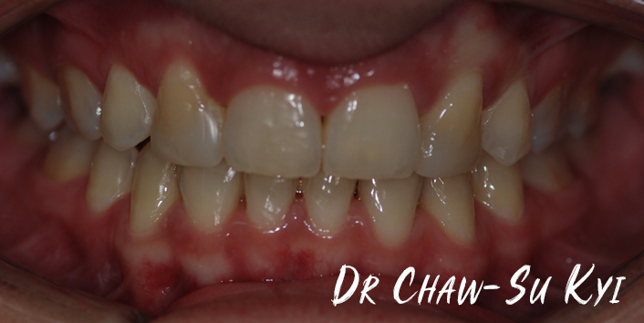 After Adult braces Treatment, teeth photo, patient 33