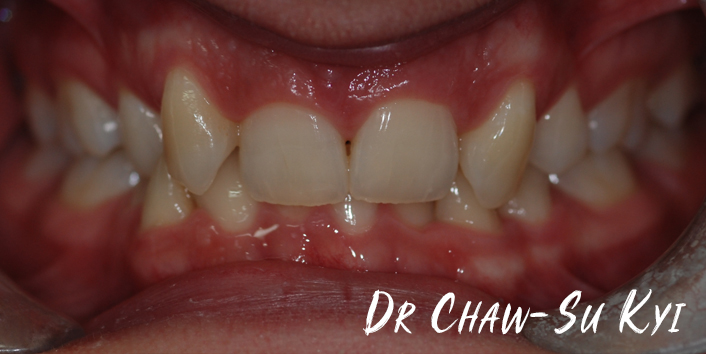 Before Adult braces Treatment, teeth photo, patient 33