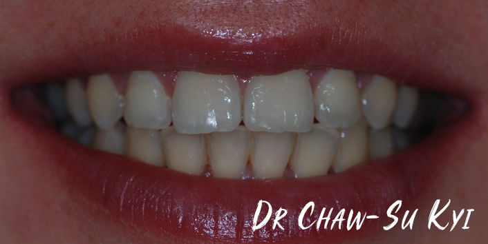 After Adult braces Treatment, teeth photo, patient 34