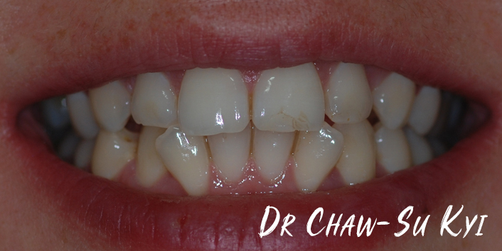 Before Adult braces Treatment, teeth photo, patient 34