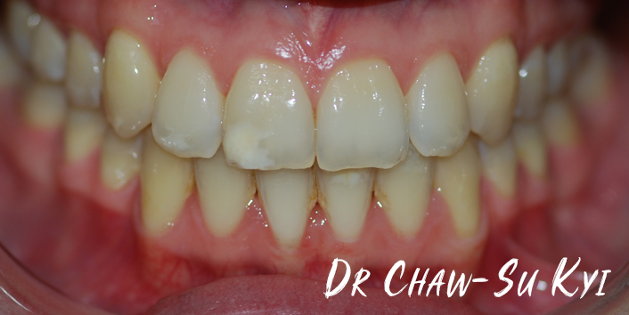 After Adult braces Treatment, teeth photo, patient 35