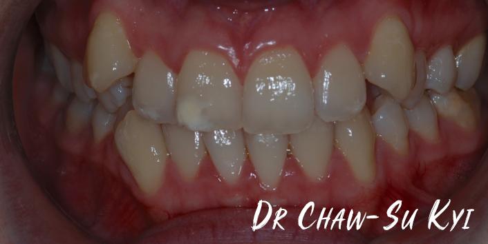 Before Adult braces Treatment, teeth photo, patient 35