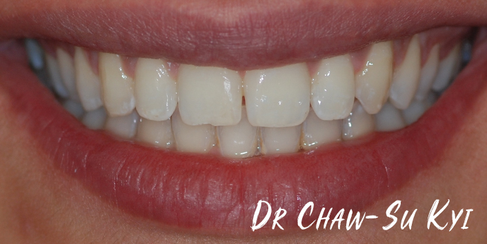 After Adult braces Treatment, teeth photo, patient 36
