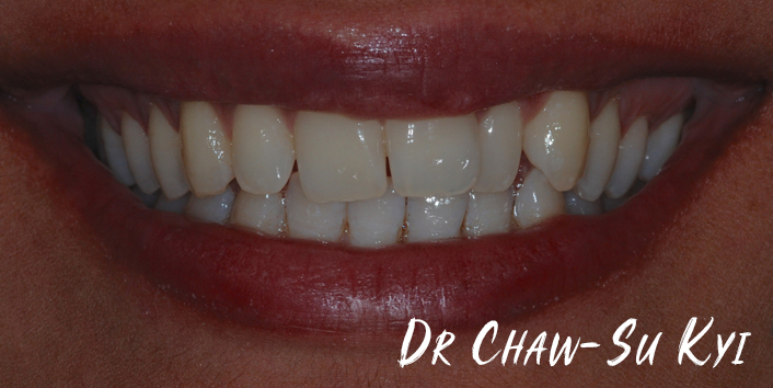 Before Adult braces Treatment, teeth photo, patient 36