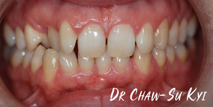 Before Adult braces Treatment, teeth photo, patient 37